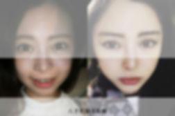 皮下減脂臉部案例圖.jpg