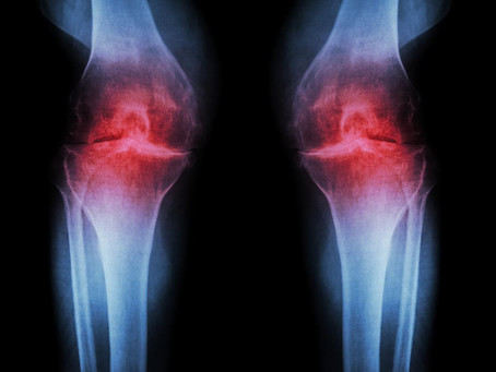What is Osteoarthritis and its causes?