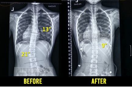 Aligned Cheneau Brace 2 Before-After Rev