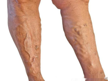 Spider Veins Prevention and Treatment