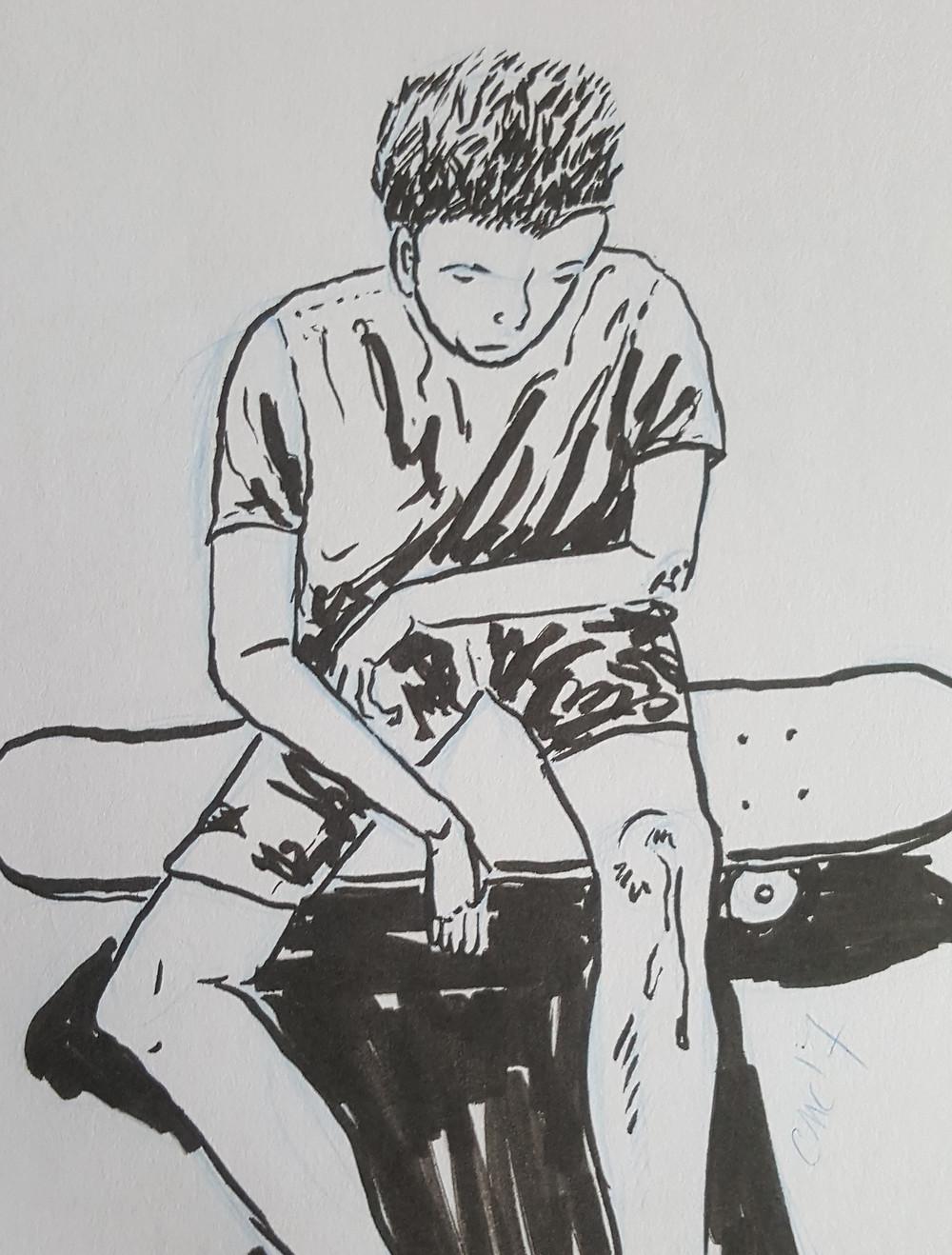 SkinnedKnee_Sketch