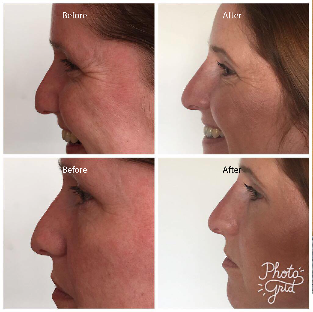 Before and After Examples of Non-Surgical Nose Jobs