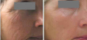 before-after-dermapen-2.jpg