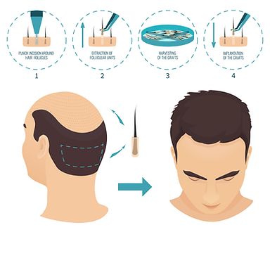 FUE hair transplant method