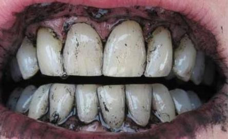 Activated Charcoal For Teeth  Whitening