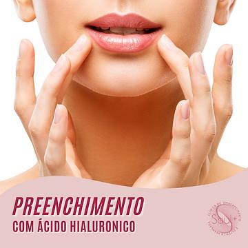1_Preenchimento.png