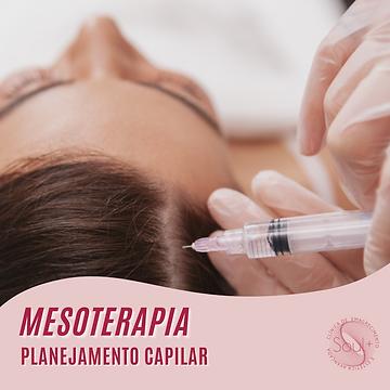 1_Mesoterapia capilar.png