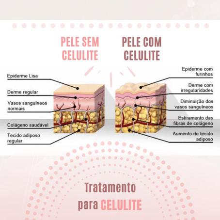 Tratamento para celulite
