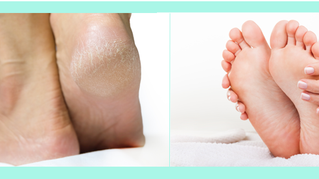 Are you neglecting your feet?
