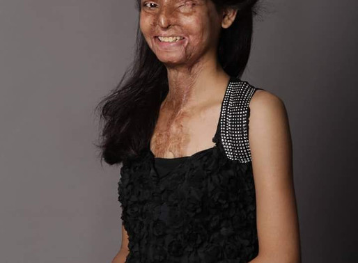 Life after the acid attack