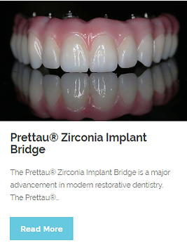 Prettau Zirconia Implant Bridge | Wellness Dental Center | Westlake Village