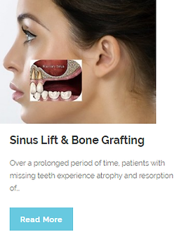 Sinius Lift & Bone Grafting | Wellness Dental Center | Westlake Village