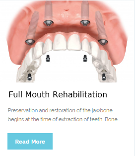 Full Mouth Rehabilitation | Wellness Dental Center | Westlake Village