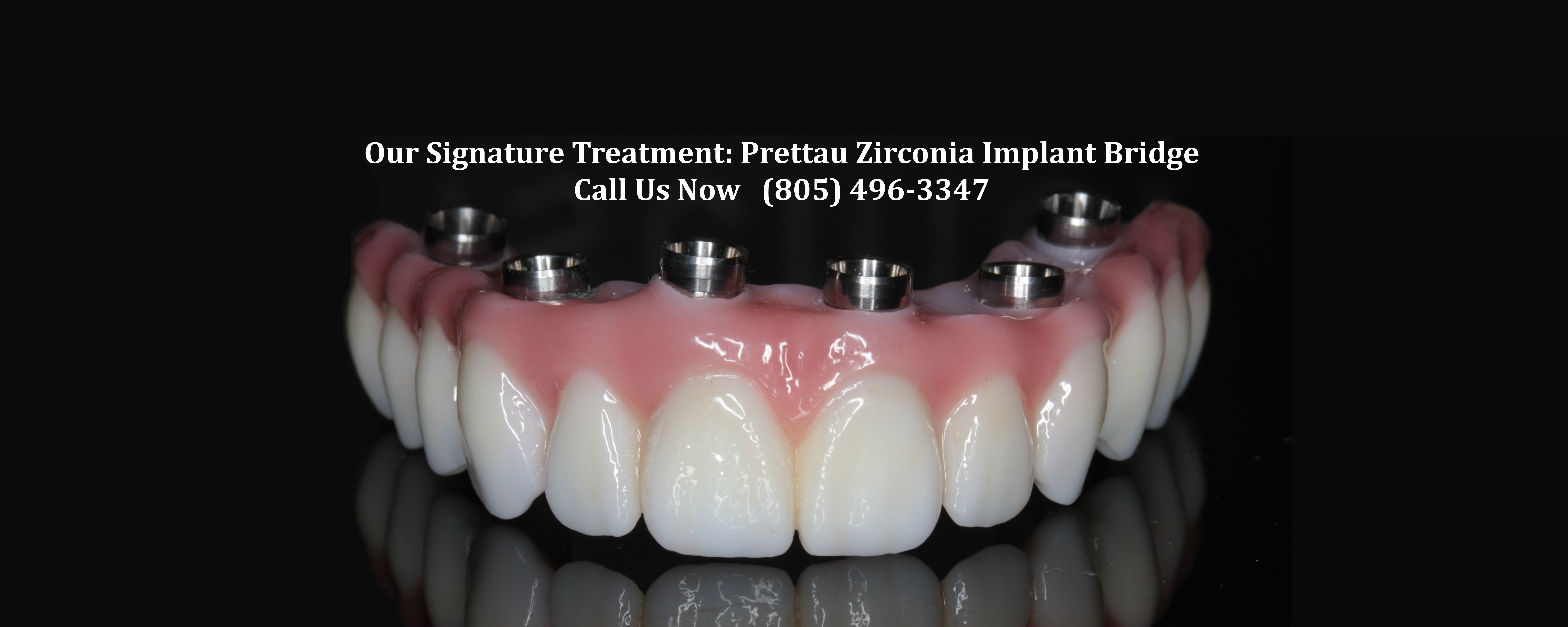 Prettau Zirconia Implant Bridge