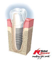 Nobel Biocare Dental Implants | Westlake Village | Wellness Dental Center
