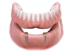Overdenture with Dental Implants | Westlake Village | Wellness Dental Center