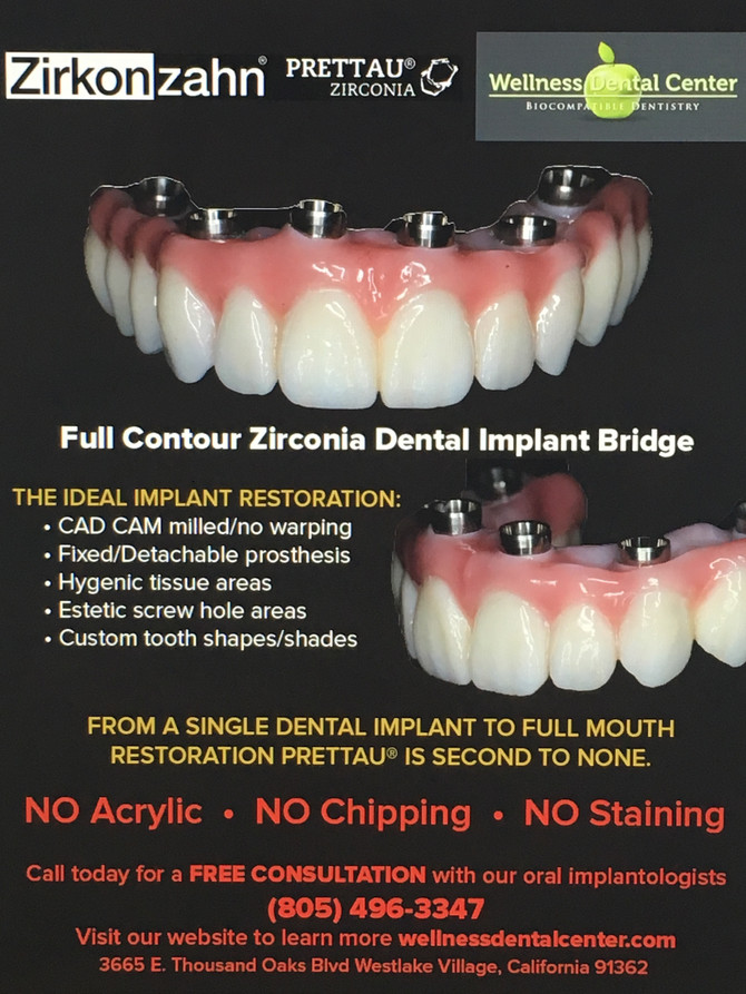 Full Contour Zirconia Dental Implant Bridge