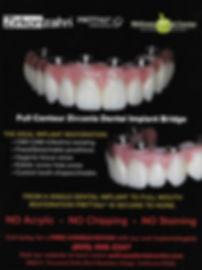Prettau Zirconia Dental Implant Bridge by Dr. Andrey Rossius