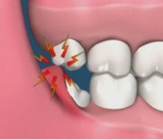 Wisdom Tooth Extraction | Westlake Village | Wellness Dental Center
