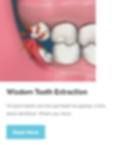 Wisdom Tooth Extraction | Wellness Dental Center | Westlake Village
