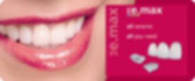 E.Max Ceramic Porcelain Veneers | Westlake Village | Wellness Dental Center