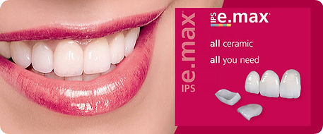 E.Max Ceramic Porcelain Veneers | Westlake Village | Wellness Dental Center
