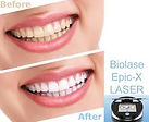 Waterlase Epic X | Advanced Tooth Whitening | Wellness Dental Center | Thousand Oaks
