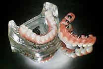 Prettau Zirconia Implant Bridge | Westlake Village | Wellness Dental Center