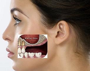 Sinus Lift & Bone Grafting   Westlake Village   Wellness Dental Center