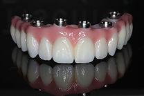 Full Mouth Rehabilitation | Thousand Oaks | Wellness Dental Center