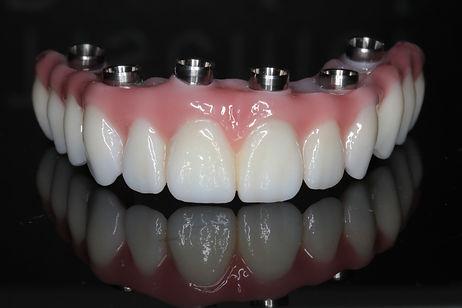 Prettau Zirconia Implant Bridge | Thousand Oaks | Wellness Dental Center