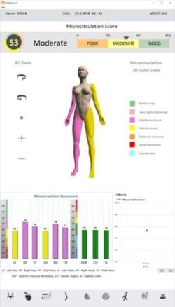 microcirculation score.jpg