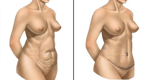 Abdominoplastia .png