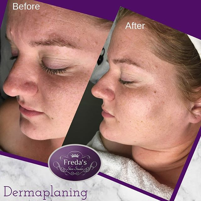 Dermaplaning works on all skin types. ⭐️