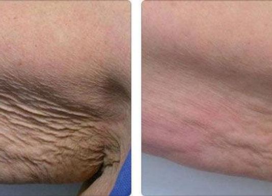 Tratamento para flacidez tissular - 10 sessões
