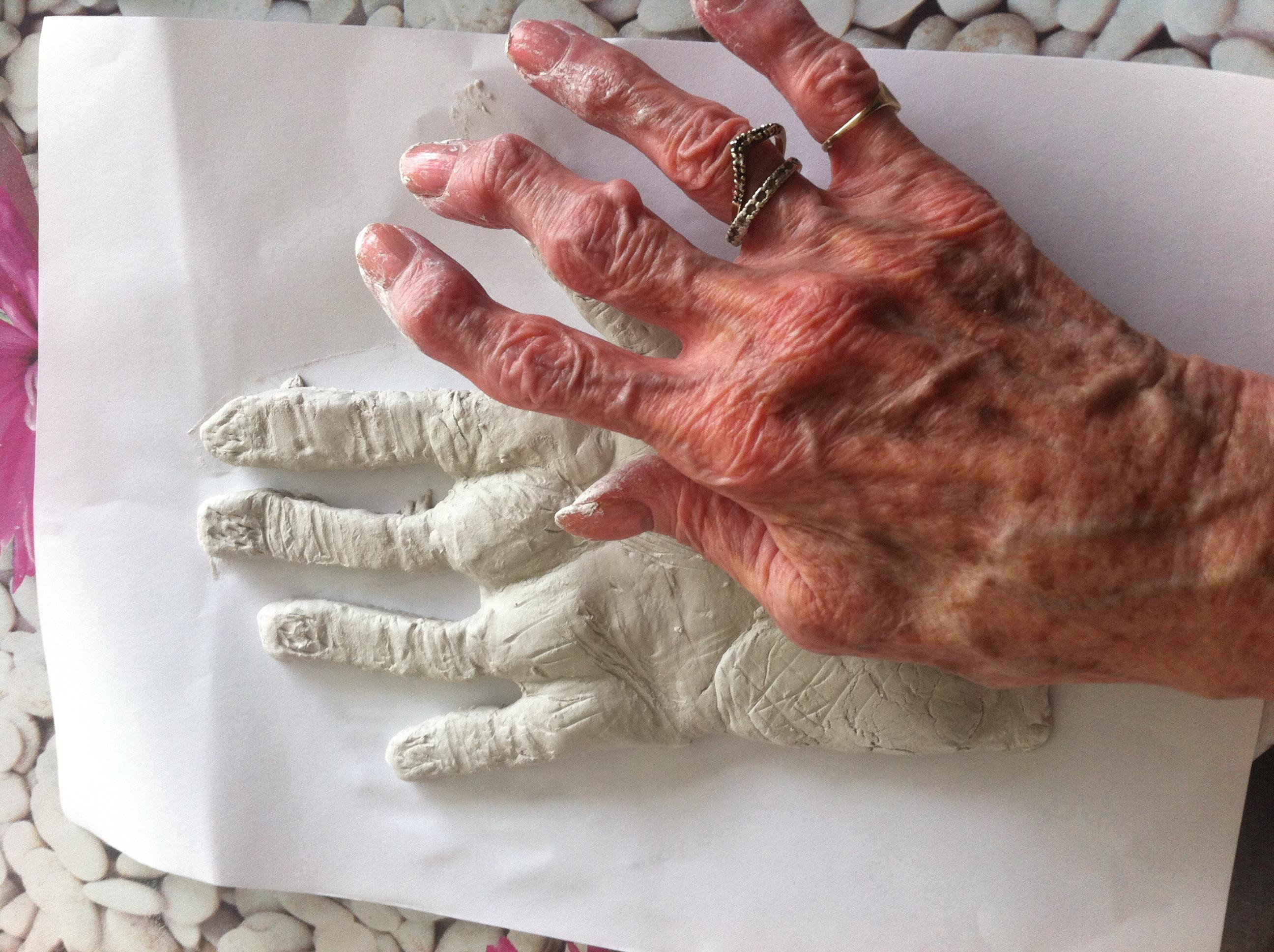 Emma Hands 5