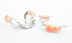 Metal denture