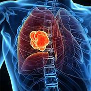 2. Lung.jpg