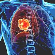 2. Lung CE.jpg