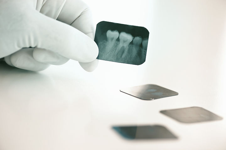 Dental x-ray_edited.jpg