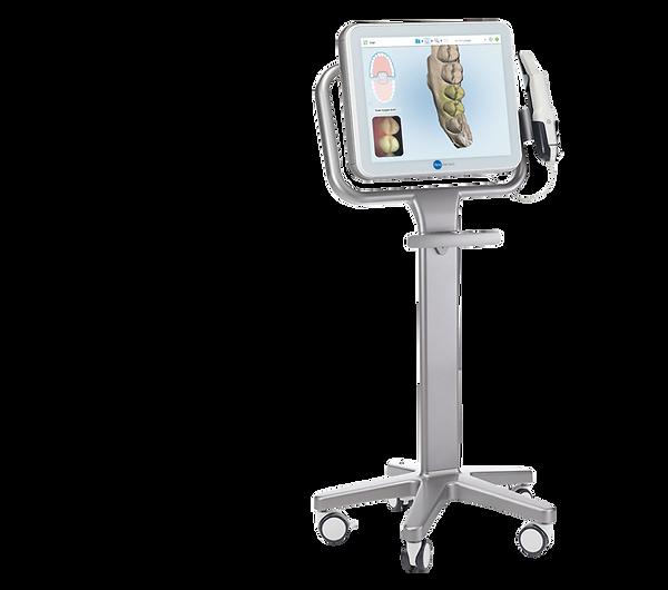 Itero scanner