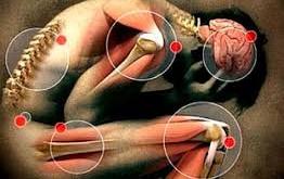 Cuerpo - mente y los dolores musculo esqueléticos