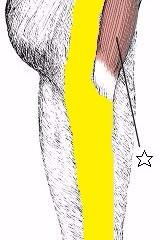膝痛に関係する筋肉②大腿筋膜張筋・腸脛靭帯