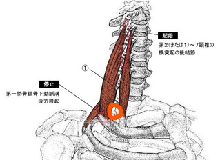斜角筋症候群