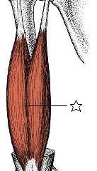 肩の痛みに関係する筋肉②上腕二頭筋