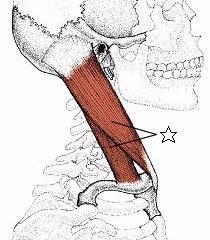 肩こりに関係する筋肉⑦胸鎖乳突筋