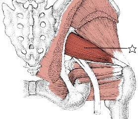 腰痛に関係する筋肉⑥梨状筋