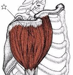 肩の痛みに関係する筋肉④三角筋