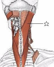 多摩市多摩センターの整体院、肩こりや腰痛におすすめの身体均整堂からだやの頭板状筋図