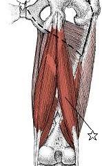 膝痛に関係する筋肉④大腿二頭筋